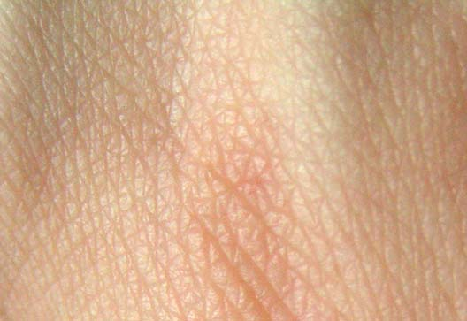 Researchers identify mechanisms that make skin a protective barrier